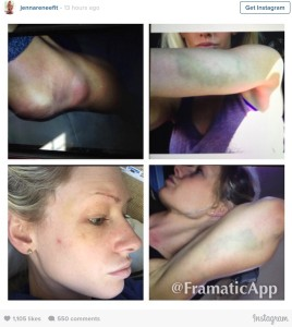 Browne abuse victim